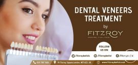 Our Dentists will Create Natural Looking Veneers for You