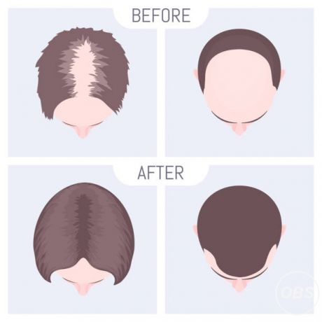 Prp Hair Transplant  Fortes Clinic